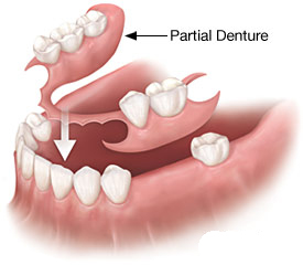 dr mancuso dentures